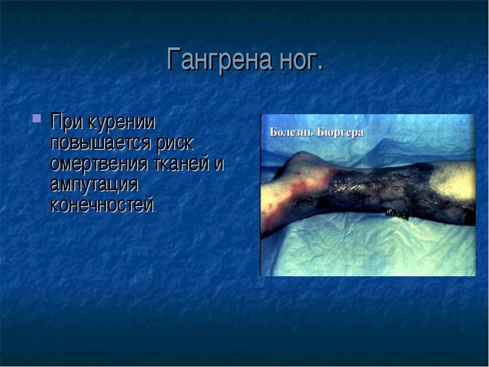 Гангрена ног. При курении повышается риск омертвения тканей и ампутация конеч...
