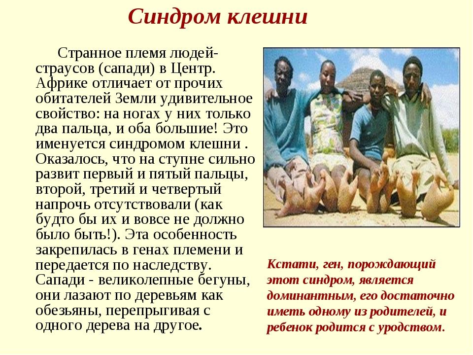 Синдром клешни Странное племя людей- страусов (сапади) в Центр. Африке отлича...
