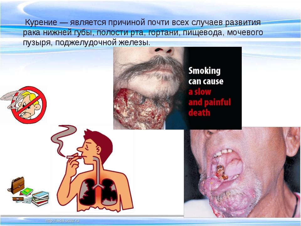 Курение — является причиной почти всех случаев развития рака нижней губы, по...