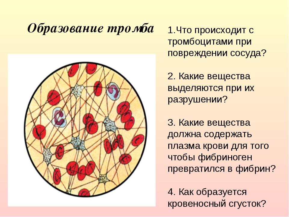 Образование тромба 1.Что происходит с тромбоцитами при повреждении сосуда? 2...