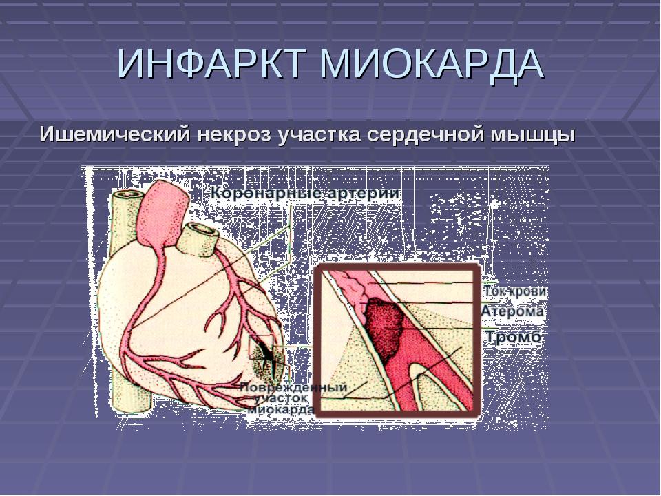 ИНФАРКТ МИОКАРДА Ишемический некроз участка сердечной мышцы