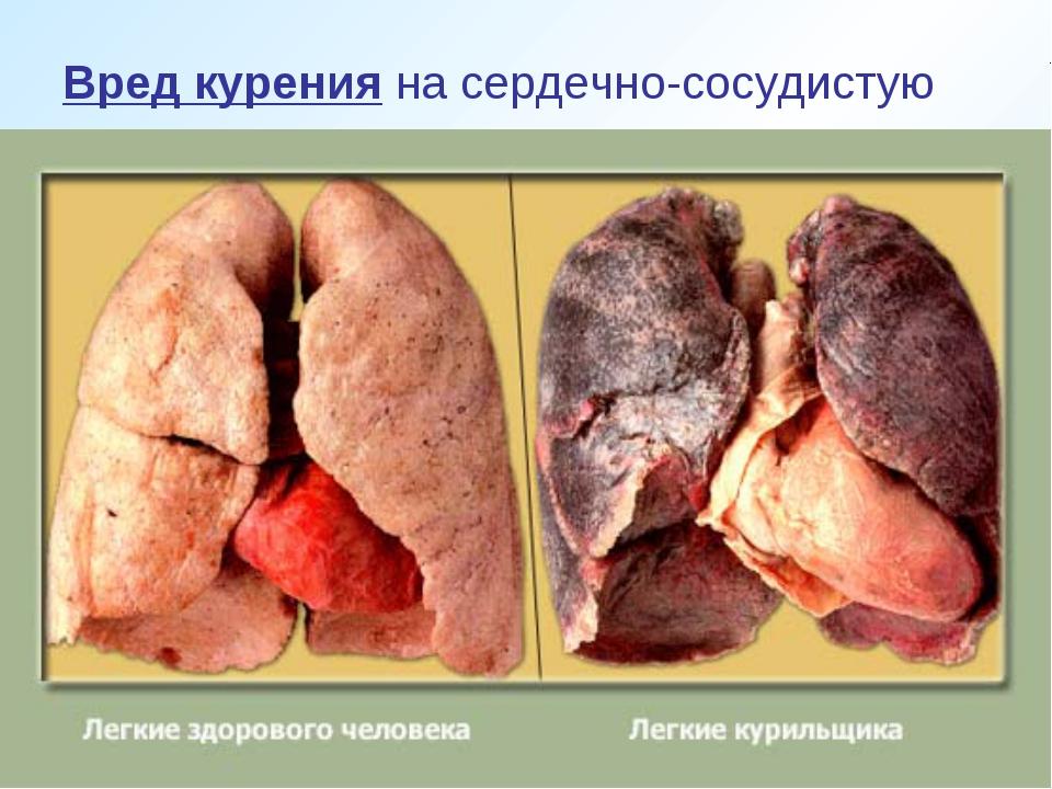 Вред курения на сердечно-сосудистую систему курильщики часто недооценивают....