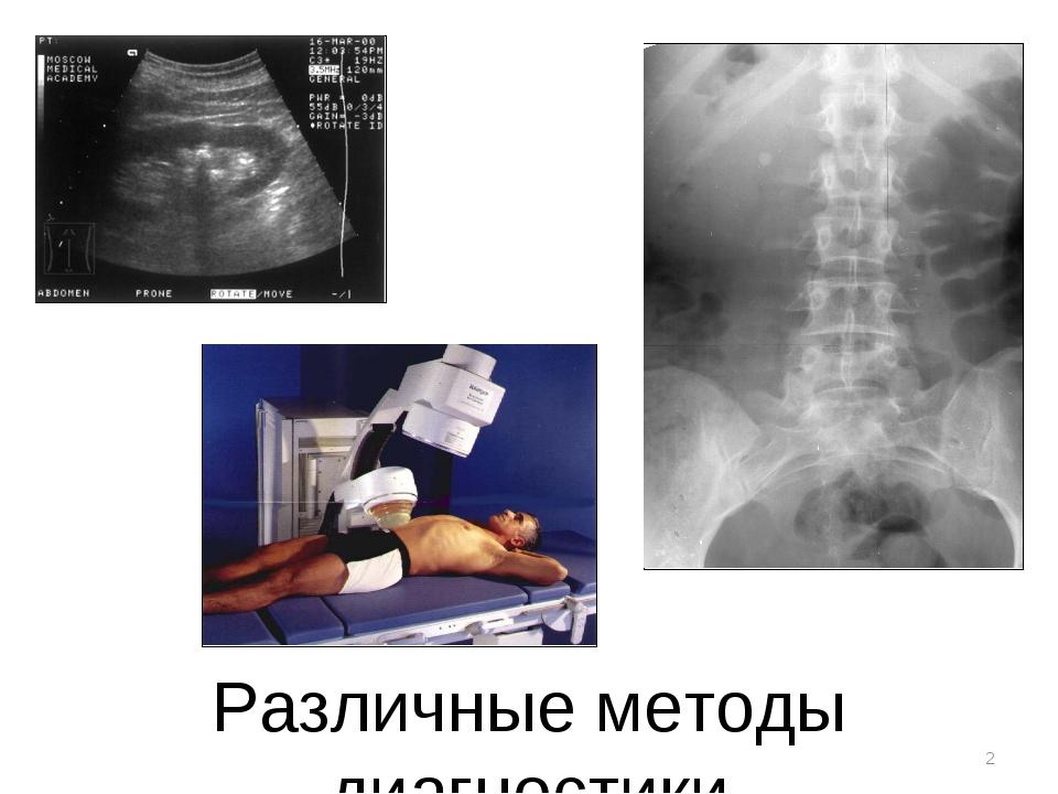 * Различные методы диагностики