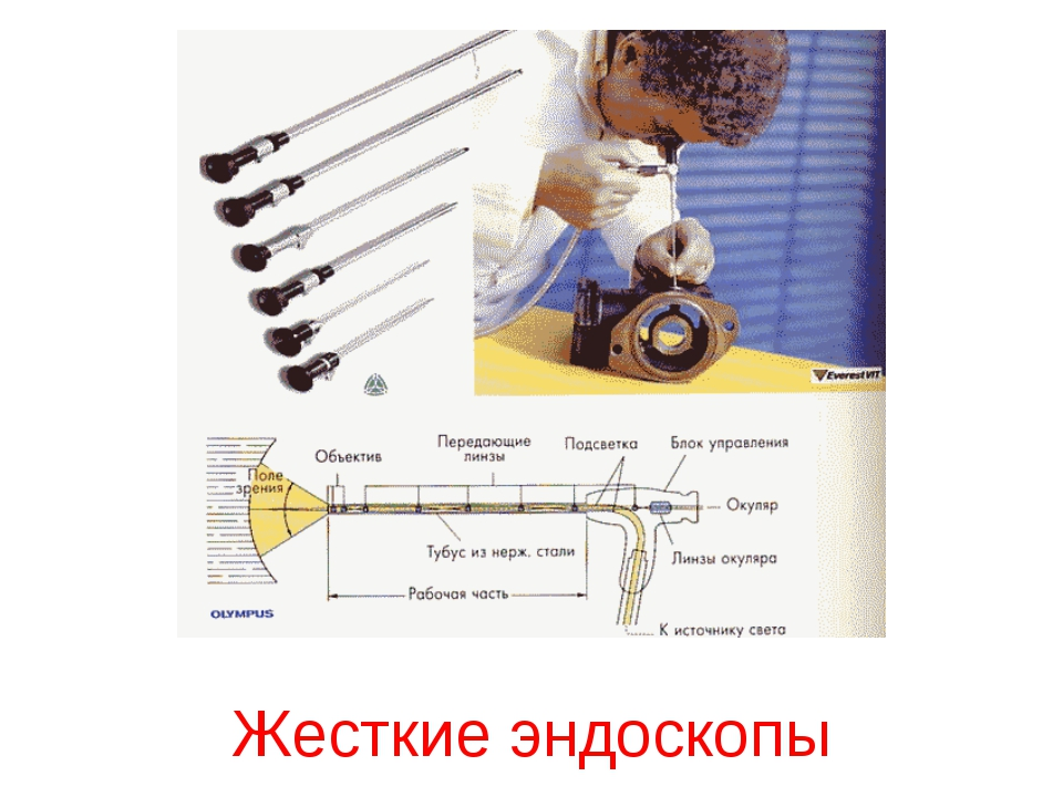 Жесткие эндоскопы