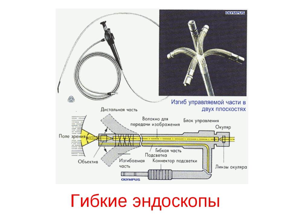 Гибкие эндоскопы