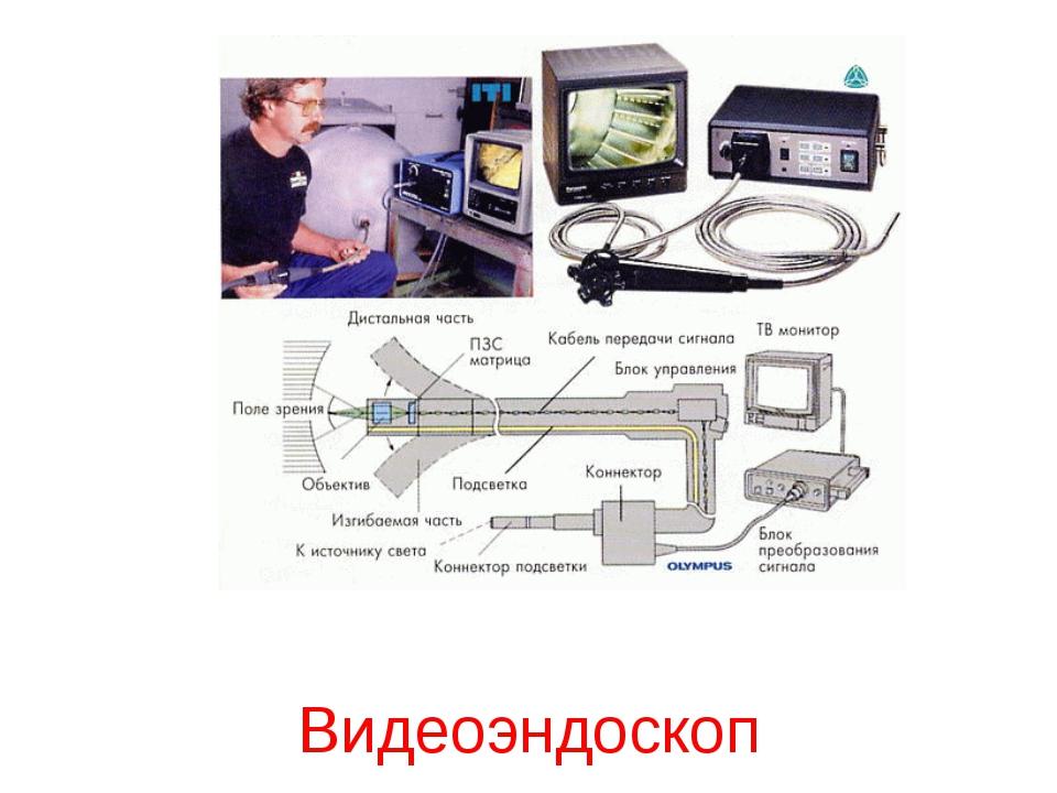 Видеоэндоскоп