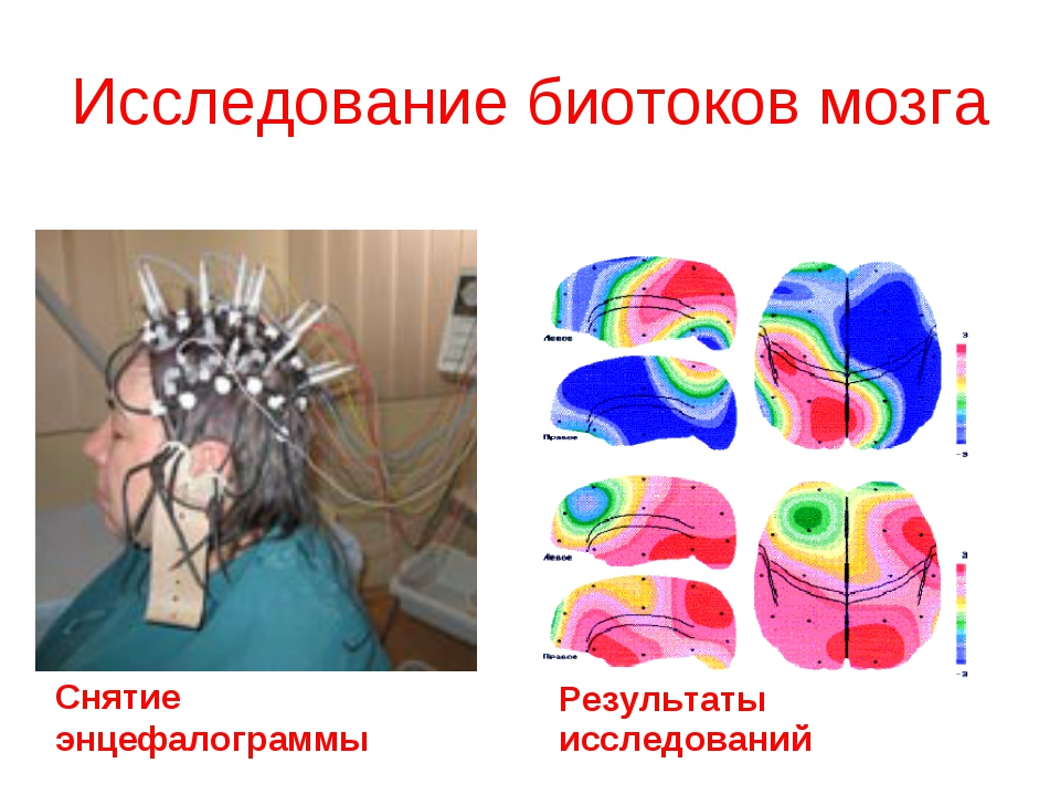 Исследование биотоков мозга Снятие энцефалограммы Результаты исследований