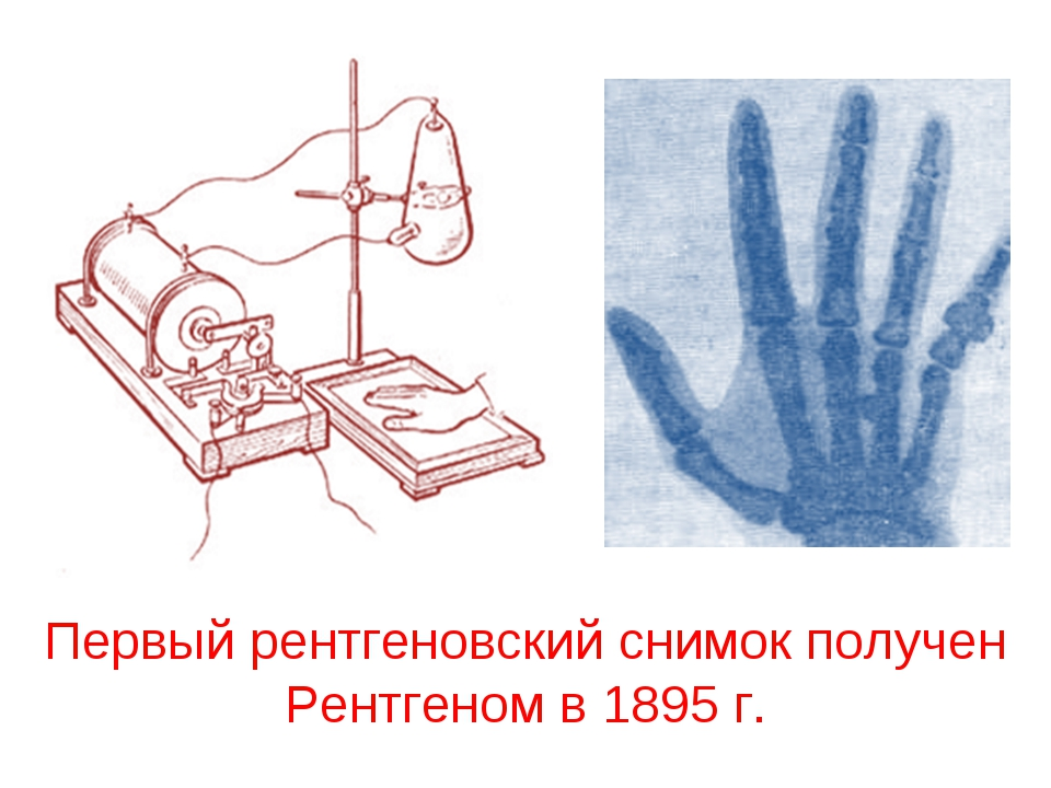 Первый рентгеновский снимок получен Рентгеном в 1895 г.