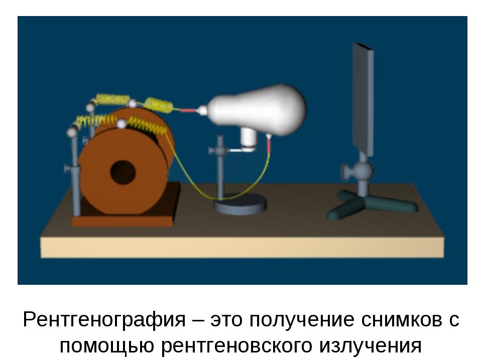 Рентгенография – это получение снимков с помощью рентгеновского излучения