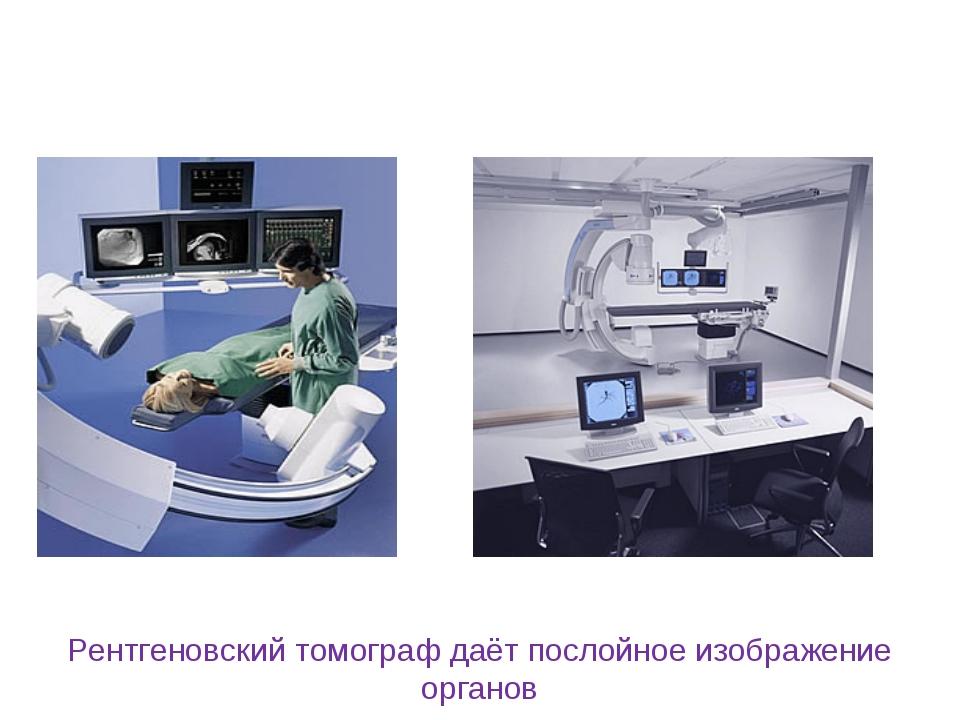 Рентгеновский томограф даёт послойное изображение органов