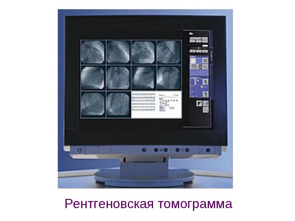 Рентгеновская томограмма