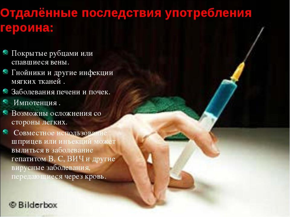 Отдалённые последствия употребления героина: Покрытые рубцами или спавшиеся в...