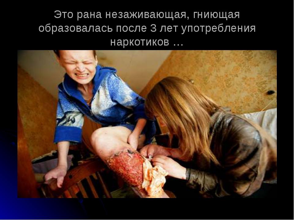 Это рана незаживающая, гниющая образовалась после 3 лет употребления наркотик...