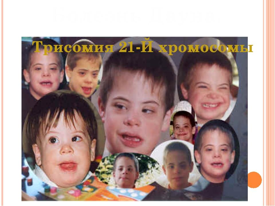 Болезнь Дауна. Трисомия 21-Й хромосомы