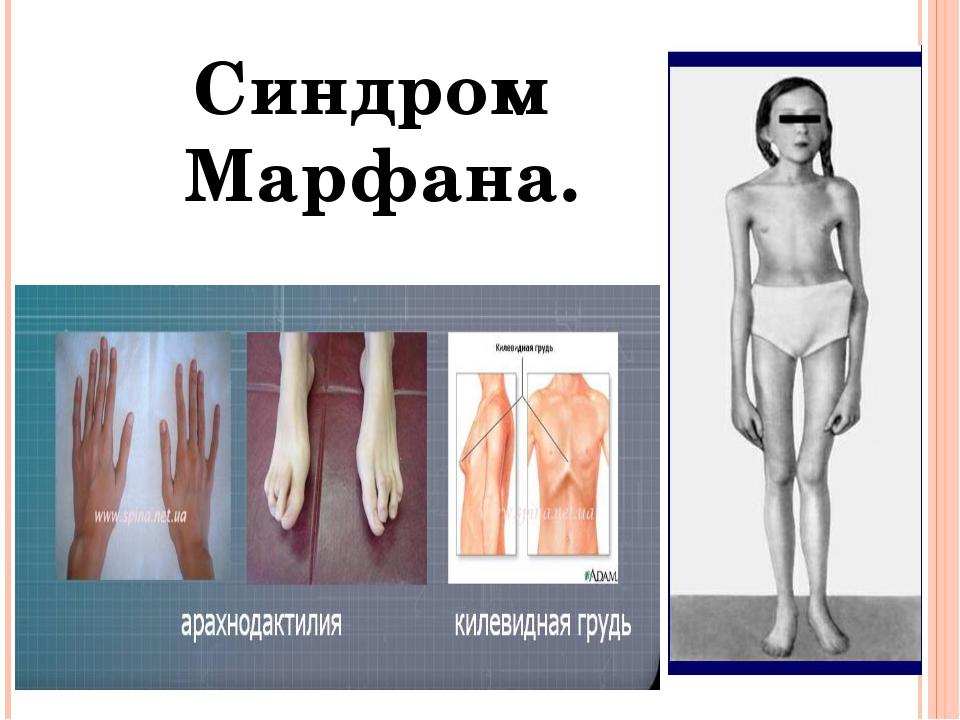 Синдром Марфана.