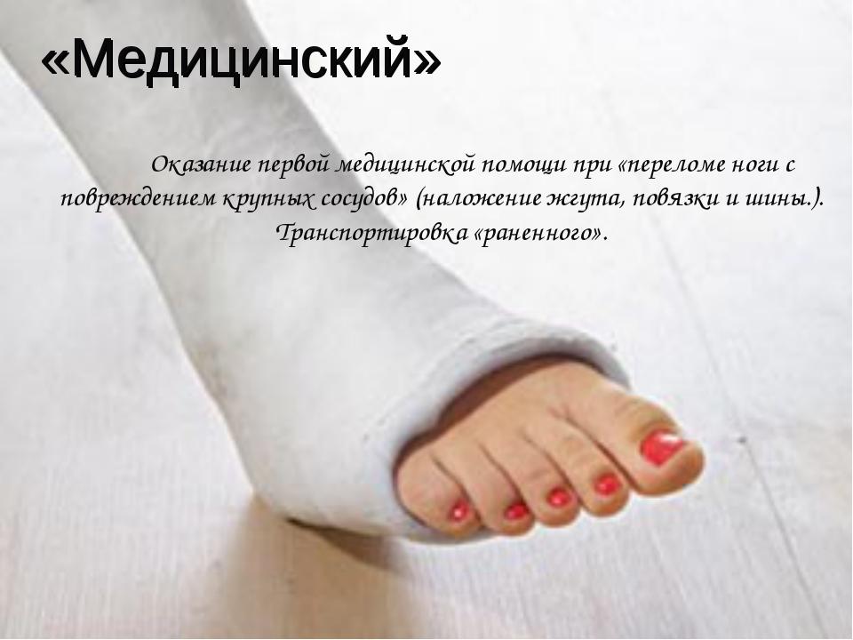 «Медицинский» Оказание первой медицинской помощи при «переломе ноги с поврежд...