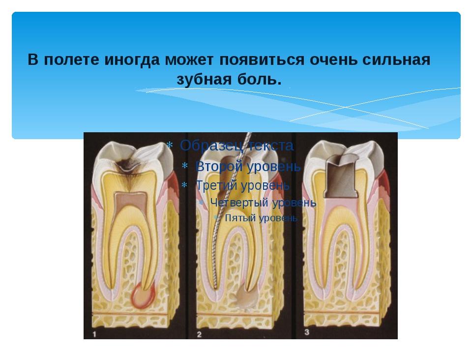 В полете иногда может появиться очень сильная зубная боль.