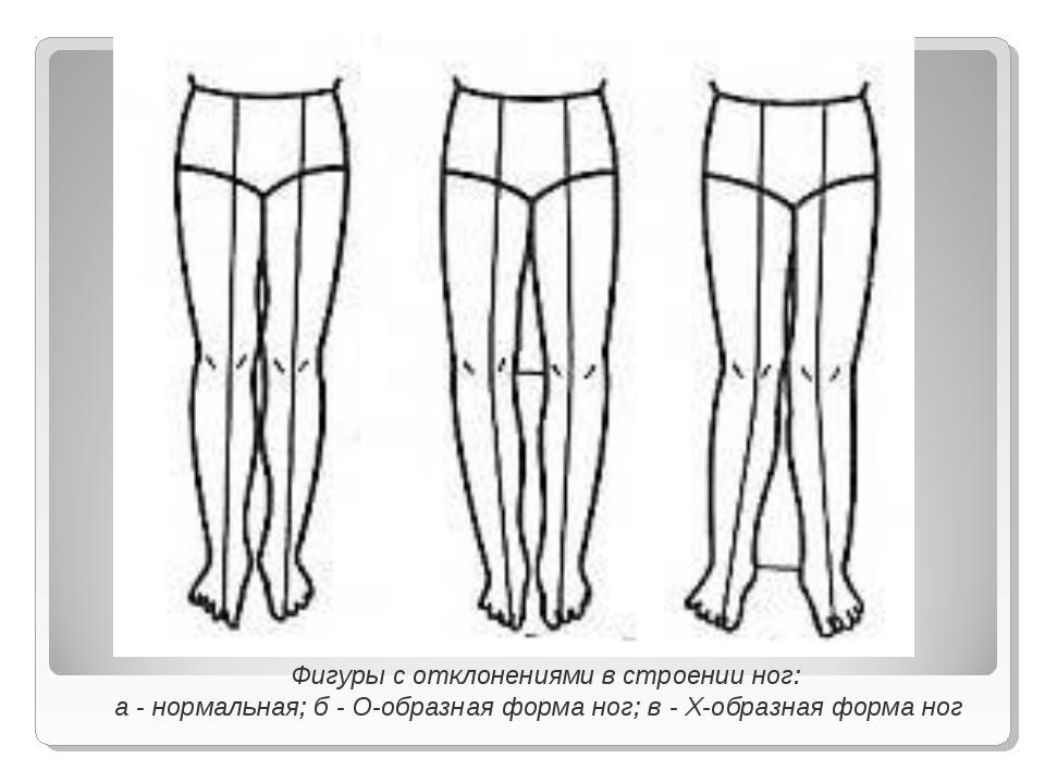 Фигуры с отклонениями в строении ног: а - нормальная; б - О-образная форма н...