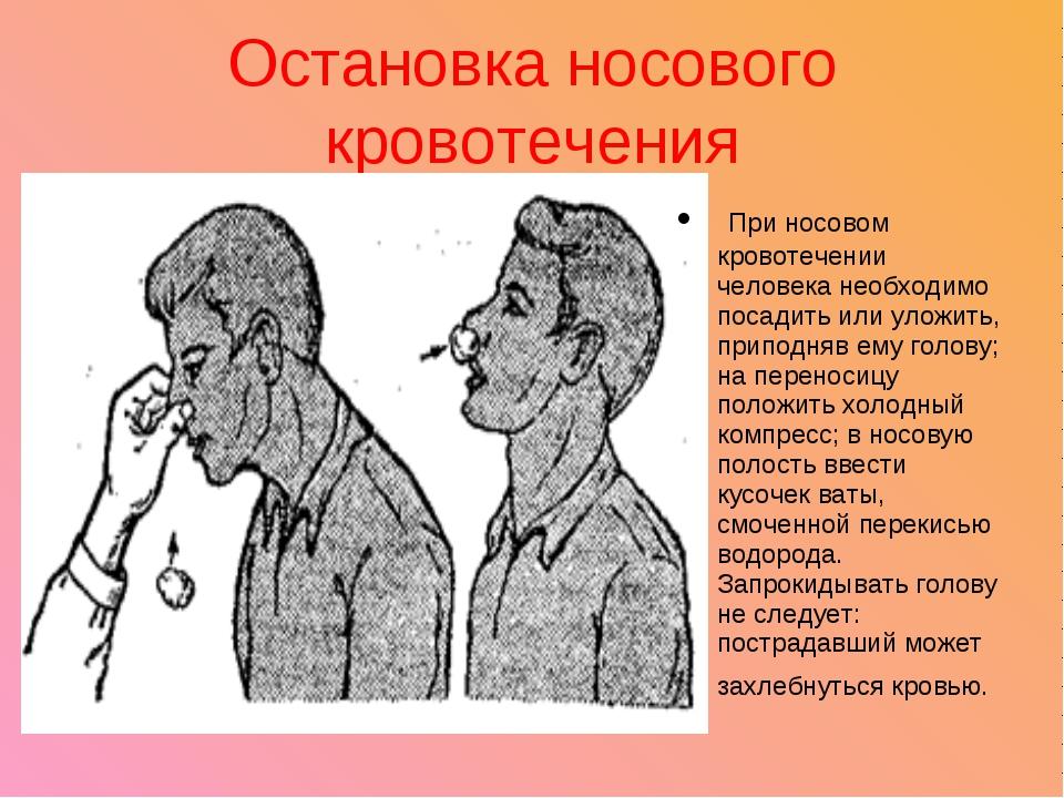 Остановка носового кровотечения При носовом кровотечении человека необходимо...