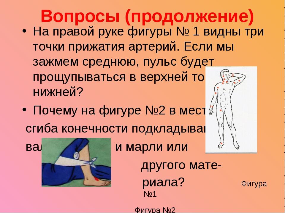 Вопросы (продолжение) На правой руке фигуры № 1 видны три точки прижатия арте...