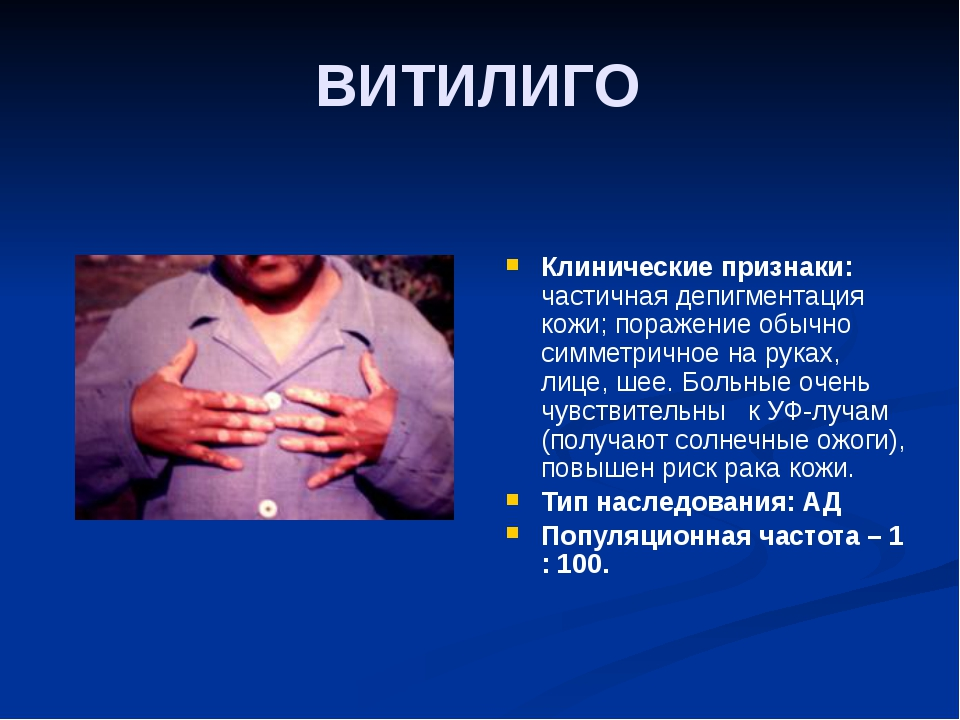 ВИТИЛИГО Клинические признаки: частичная депигментация кожи; поражение обычно...