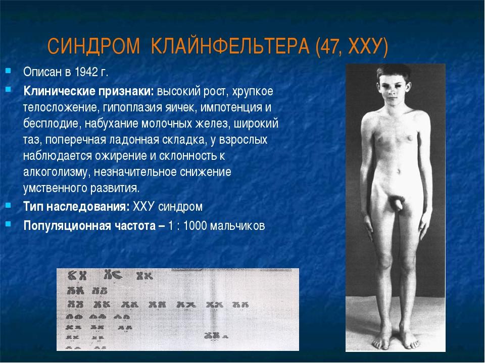 СИНДРОМ КЛАЙНФЕЛЬТЕРА (47, ХХУ) Описан в 1942 г. Клинические признаки: высоки...