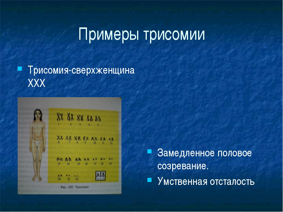 Примеры трисомии Трисомия-сверхженщина ХХХ Замедленное половое созревание. Ум...