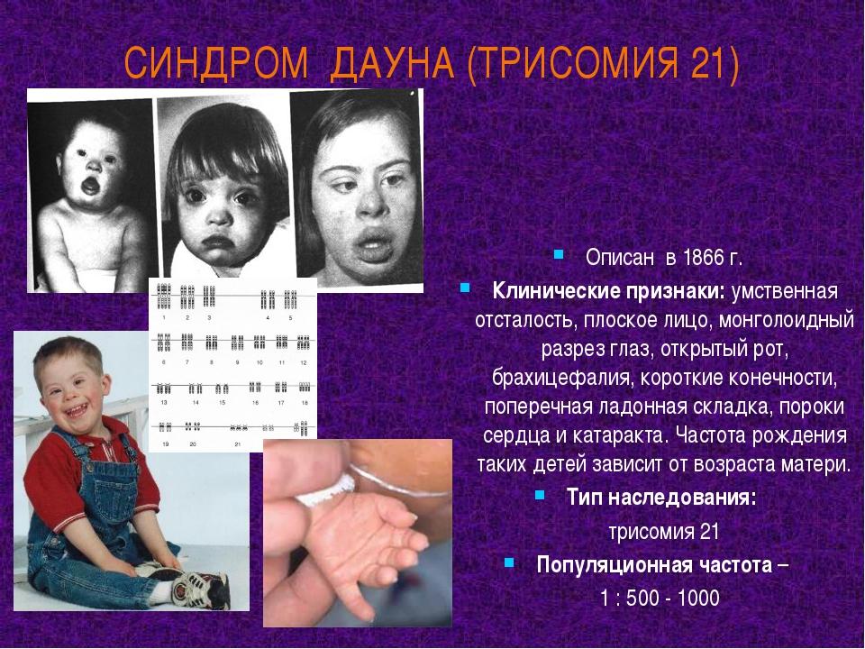 СИНДРОМ ДАУНА (ТРИСОМИЯ 21) Описан в 1866 г. Клинические признаки: умственная...