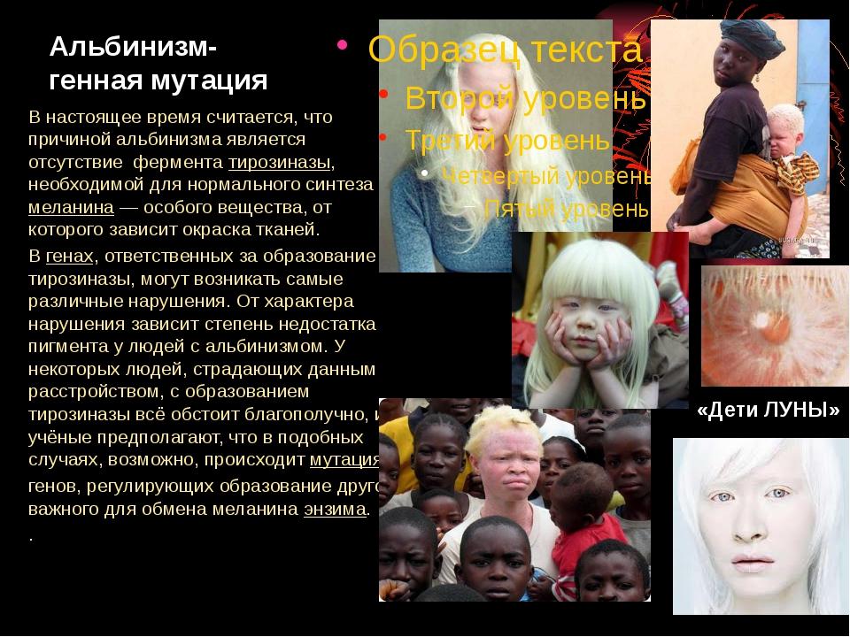 Альбинизм- генная мутация В настоящее время считается, что причиной альбинизм...