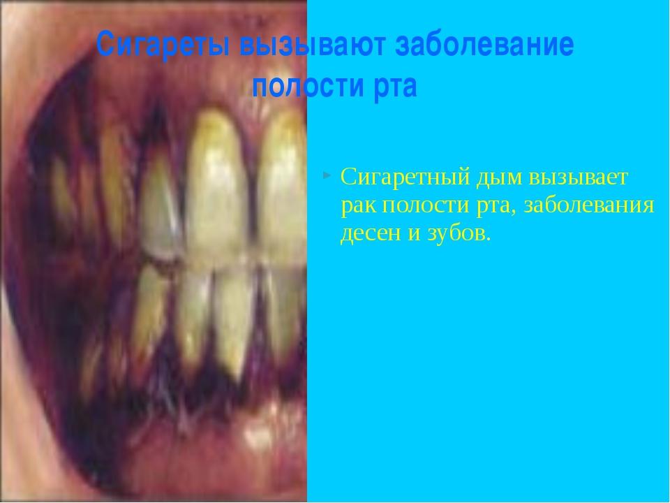 Сигареты вызывают заболевание полости рта  Сигаретный дым вызывает рак полос...