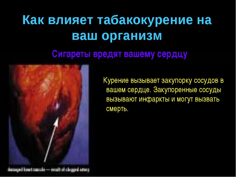 Сигареты вредят вашему сердцу Курение вызывает закупорку сосудов в вашем серд...