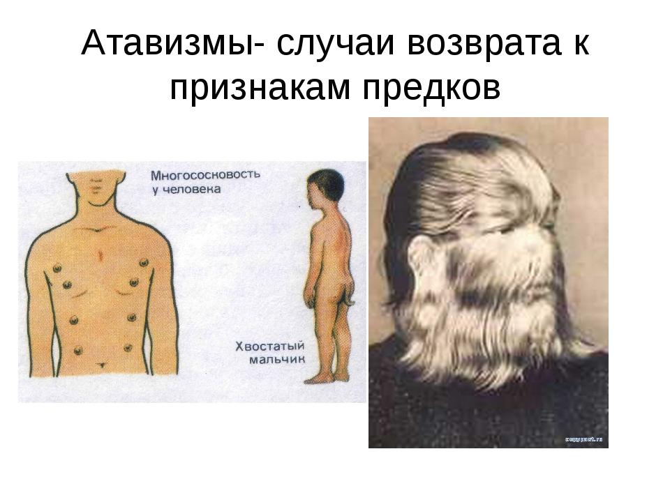 Атавизмы- случаи возврата к признакам предков