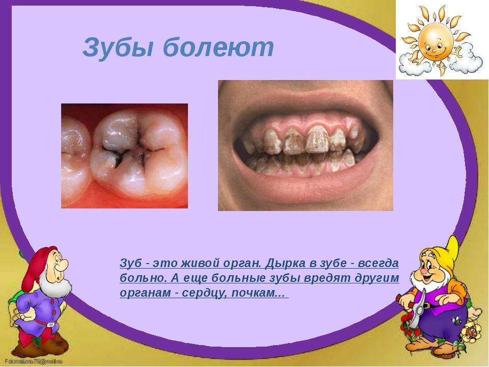 Зубы болеют Зуб - это живой орган. Дырка в зубе - всегда больно. А еще больны...