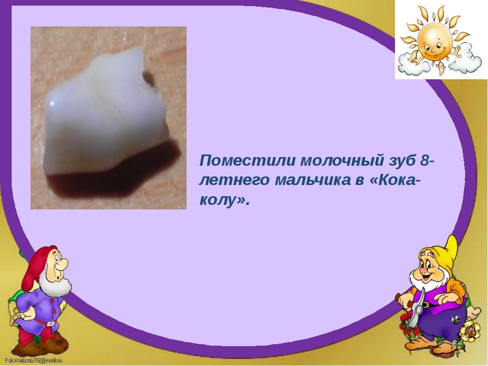 Поместили молочный зуб 8-летнего мальчика в «Кока-колу». FokinaLida.75@mail.ru