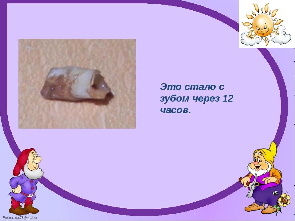 Это стало с зубом через 12 часов. FokinaLida.75@mail.ru