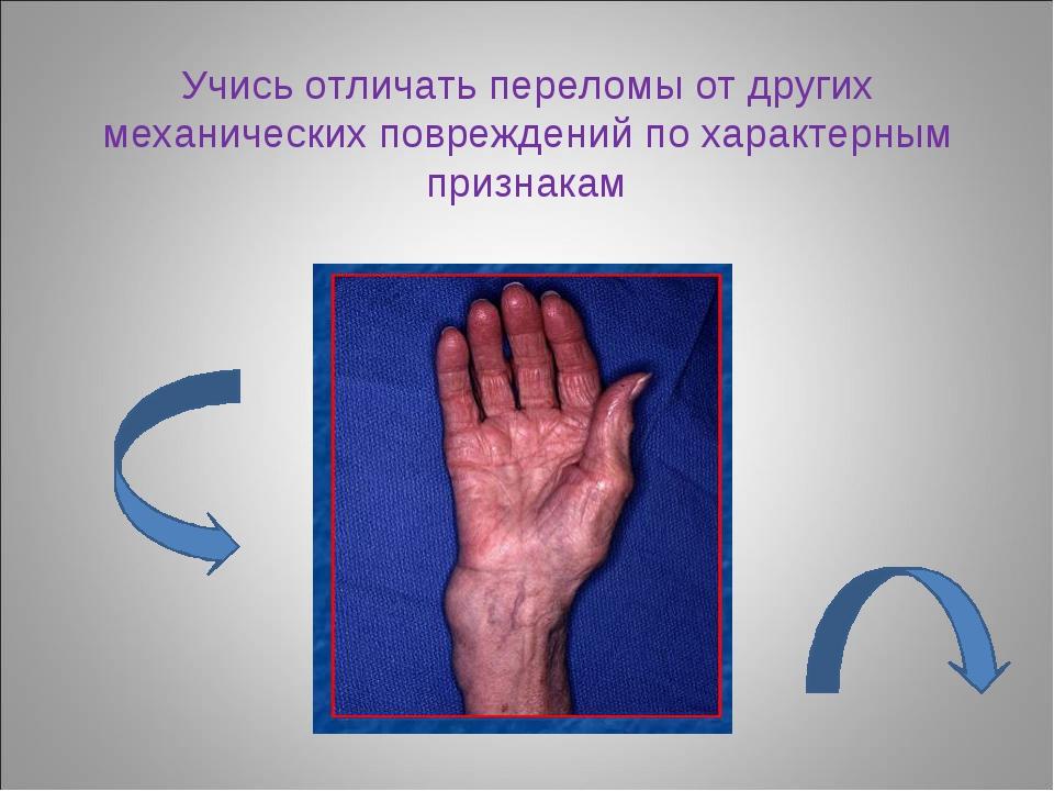 Учись отличать переломы от других механических повреждений по характерным при...