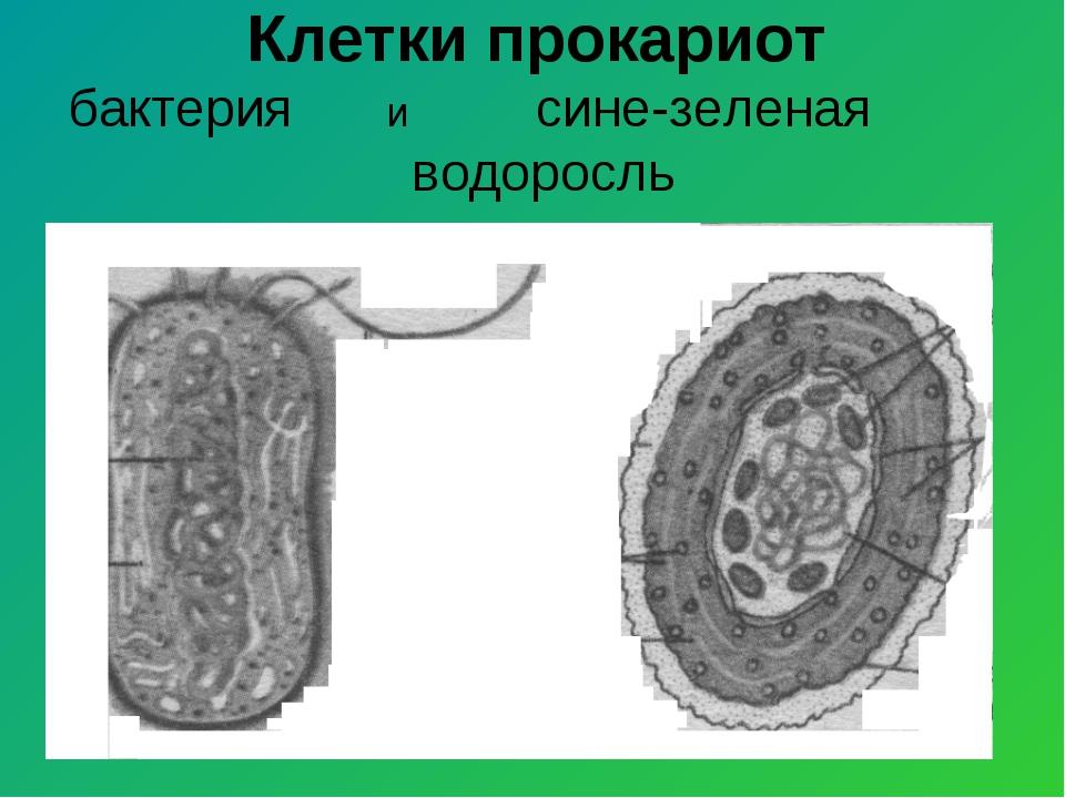 Клетки прокариот бактерия и сине-зеленая водоросль