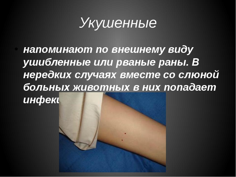 Укушенные напоминают по внешнему виду ушибленные или рваные раны. В нередких...