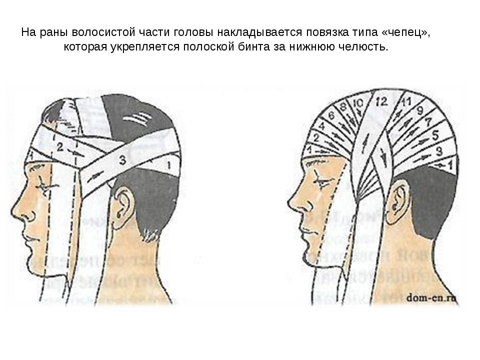 На раны волосистой части головы накладывается повязка типа «чепец», которая у...