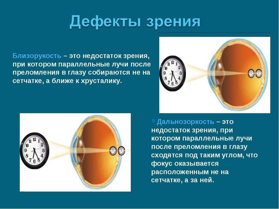 Близорукость – это недостаток зрения, при котором параллельные лучи после пре...