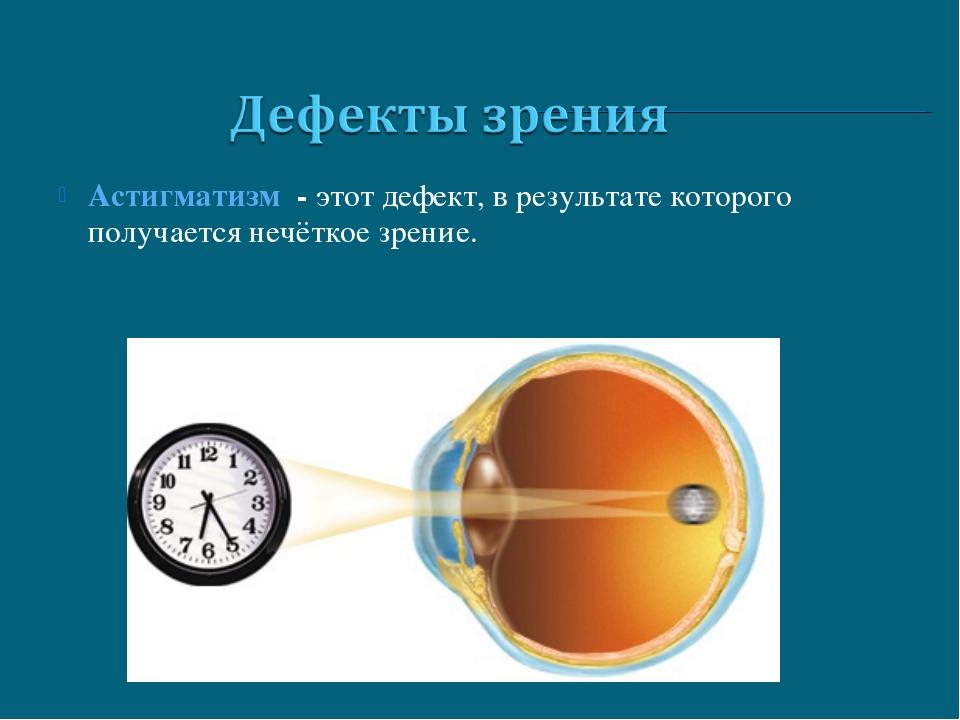 Астигматизм - этот дефект, в результате которого получается нечёткое зрение.