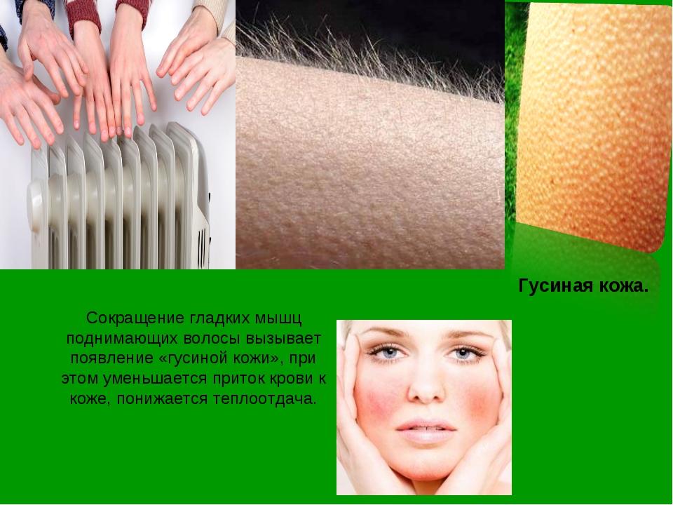 Гусиная кожа. Сокращение гладких мышц поднимающих волосы вызывает появление «...