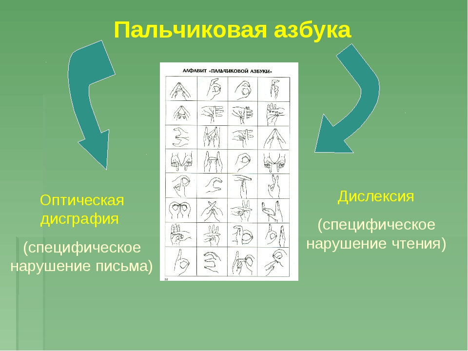 Пальчиковая азбука Оптическая дисграфия (специфическое нарушение письма) Дисл...