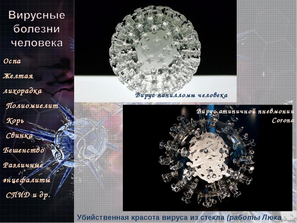 Убийственная красота вируса из стекла (работы Люка Джеррема) Оспа Желтая лихо...