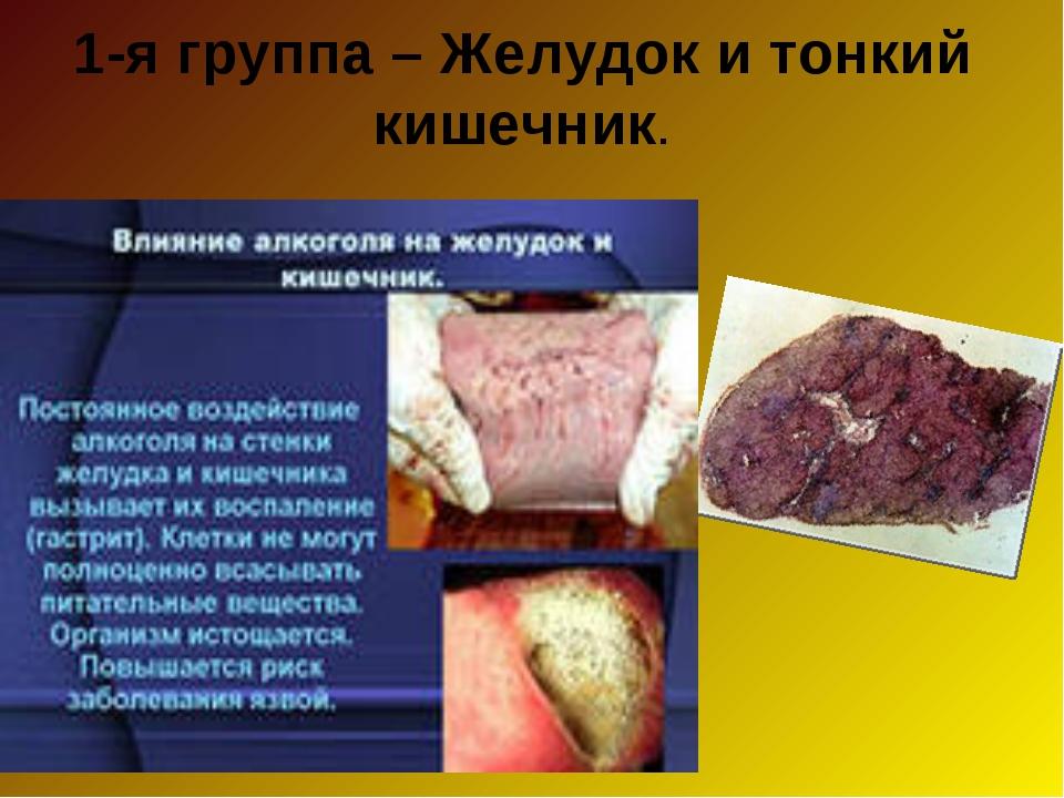 1-я группа – Желудок и тонкий кишечник.