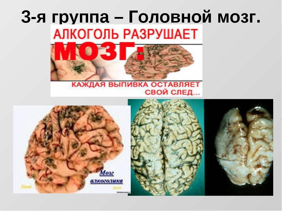 3-я группа – Головной мозг.