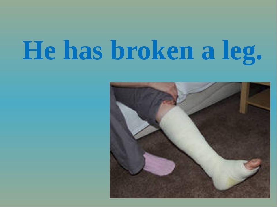 He has broken a leg.
