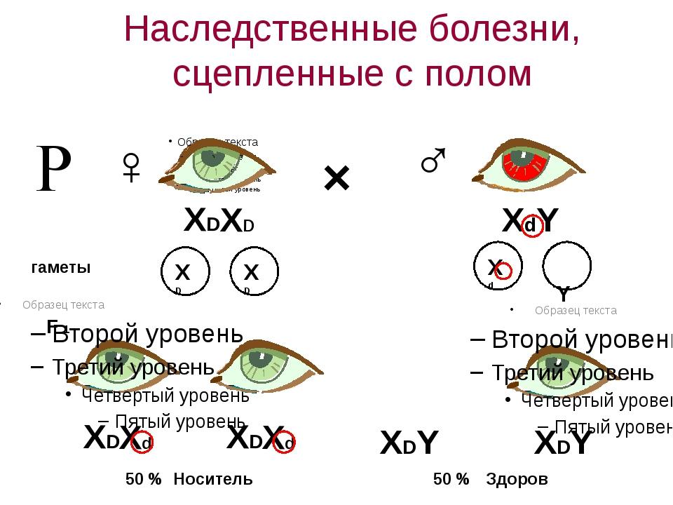 Наследственные болезни, сцепленные с полом Р ♀ ♂ × XDXD XDXd XDXd XdY XDY XDY...