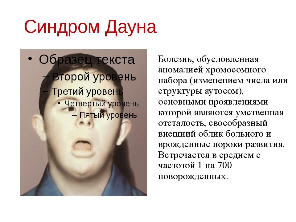 Синдром Дауна Болезнь, обусловленная аномалией хромосомного набора (изменение...