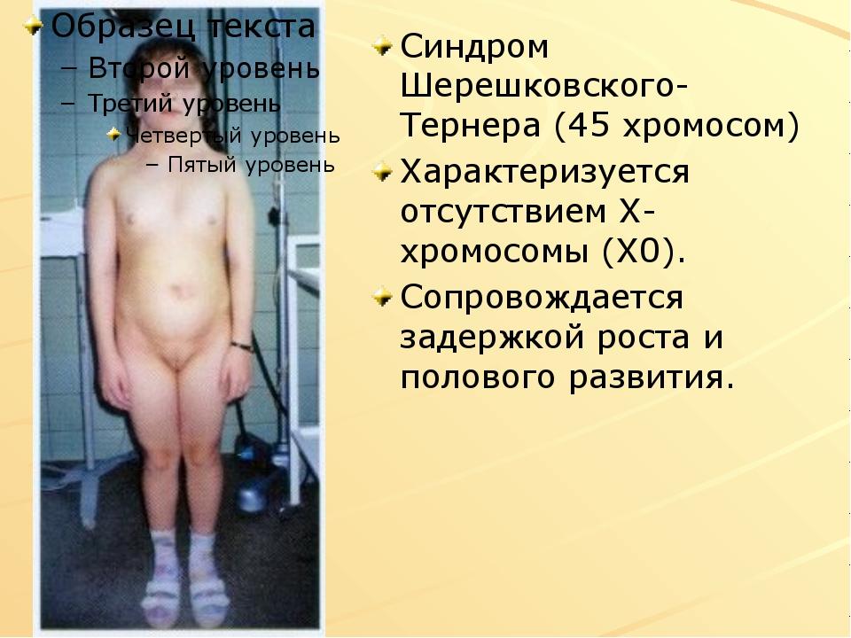 Синдром Шерешковского-Тернера (45 хромосом) Характеризуется отсутствием Х-хро...